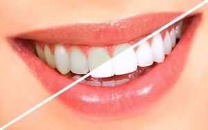 sbiancamento dentale nettuno